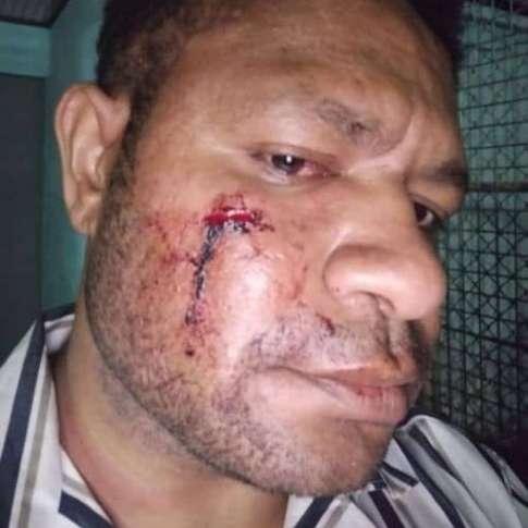 Police image of laken lepatu aigilo